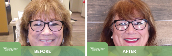 Smile before and after dental care