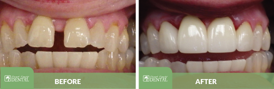 Close up of teeth before and after dental work